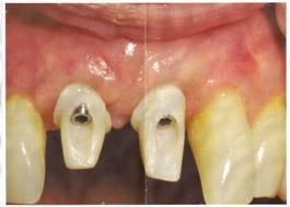 btm prothesiste dentaire paris