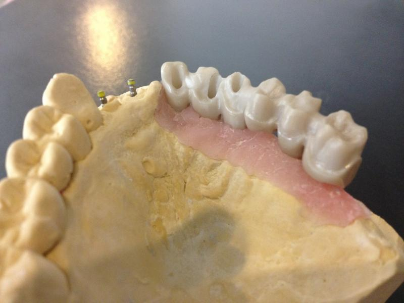 prothesiste dentaire paris