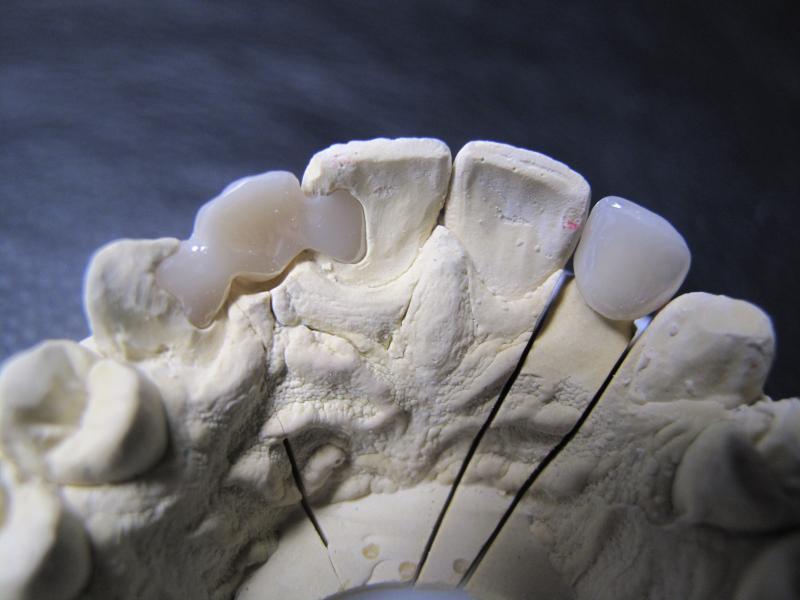 bridge coll u00e9  proth u00e9siste dentaire paris 7